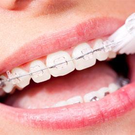 ortodonta Lublin, DentaSpa