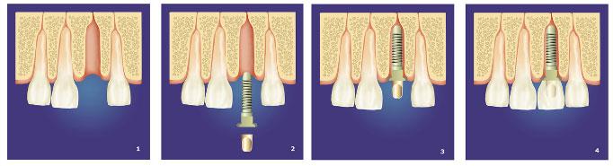 implanty-x