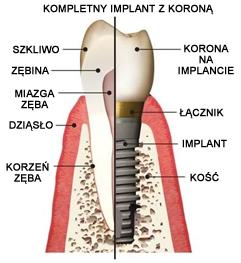 implanty2